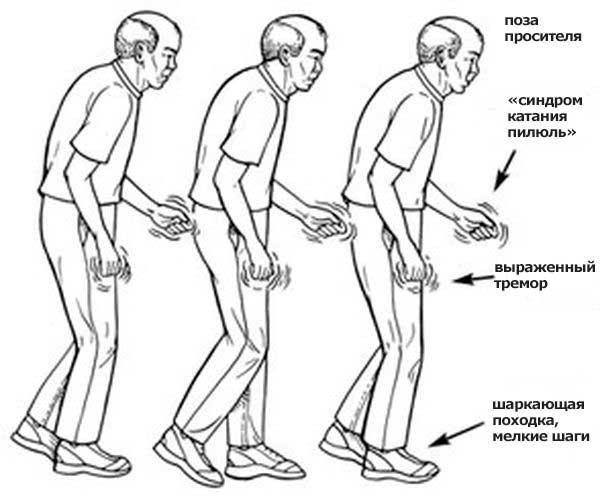 симптомы болезни паркинсона у пожилых
